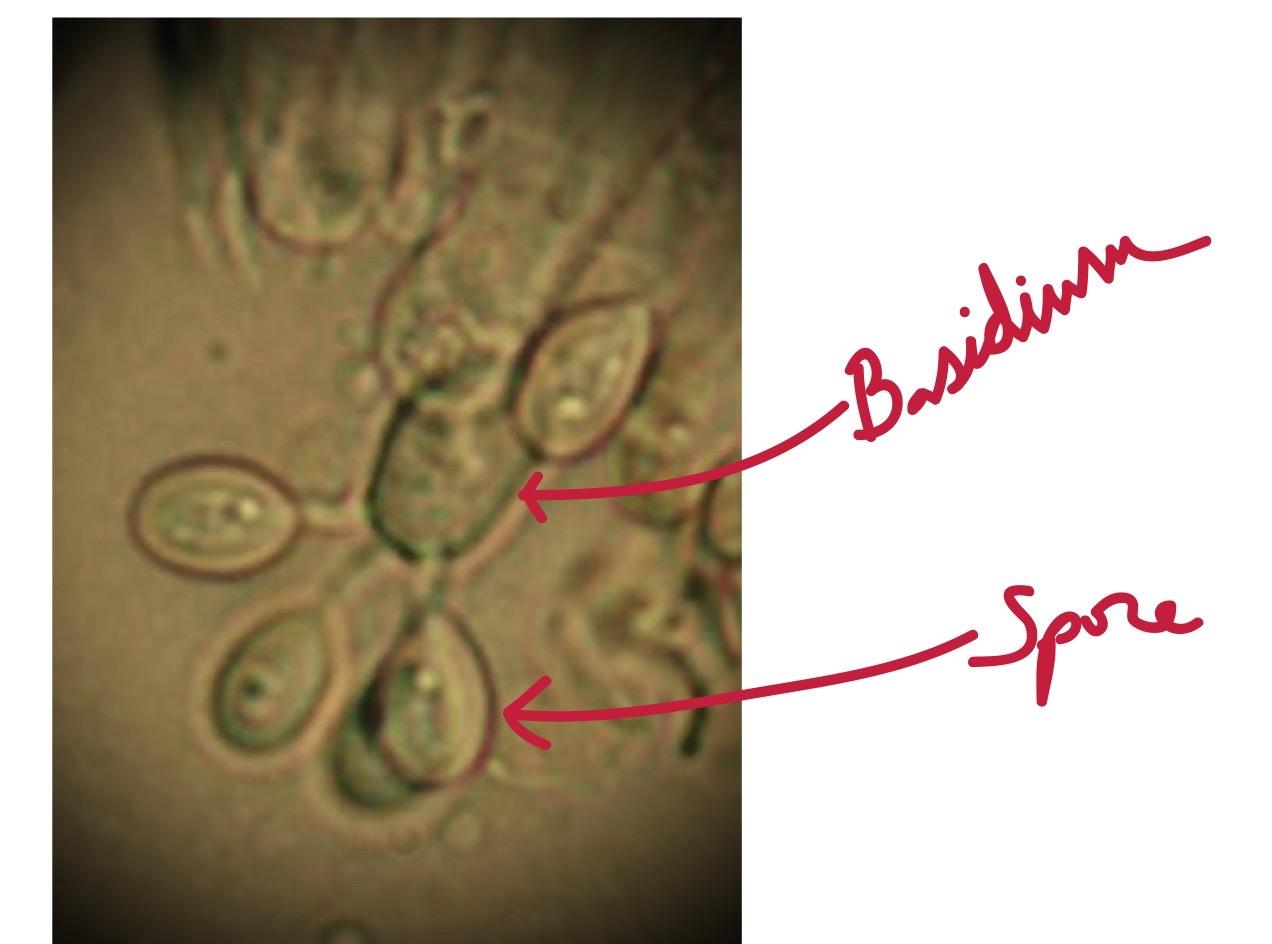 diagram of spores diagram of maturation of follicle